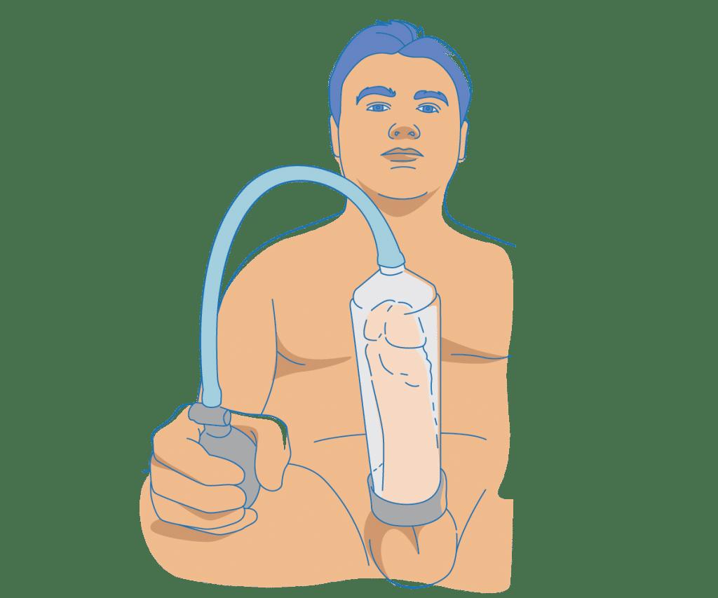 Penispumppu kokemuksia
